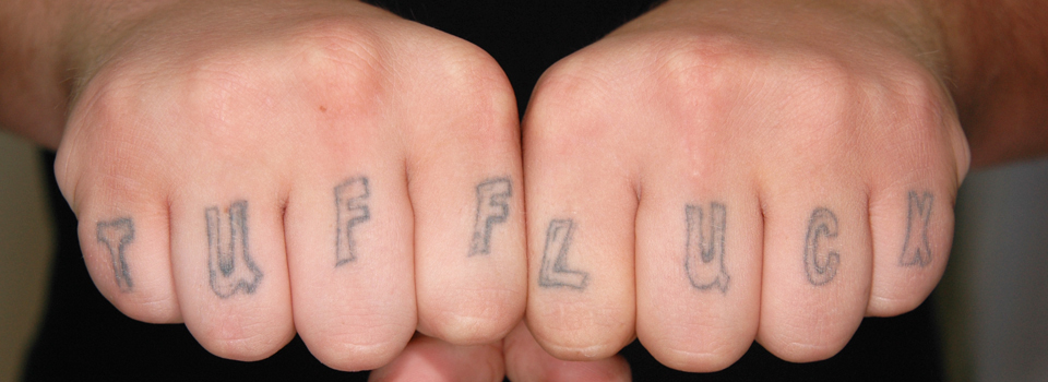 Fade Fast | Laser Tattoo Removal